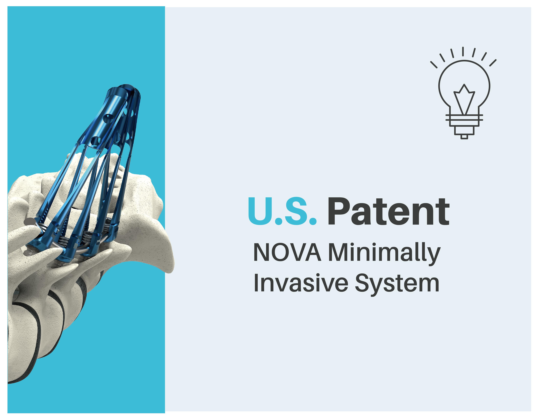 NOVA MIS System obtains U.S. patent