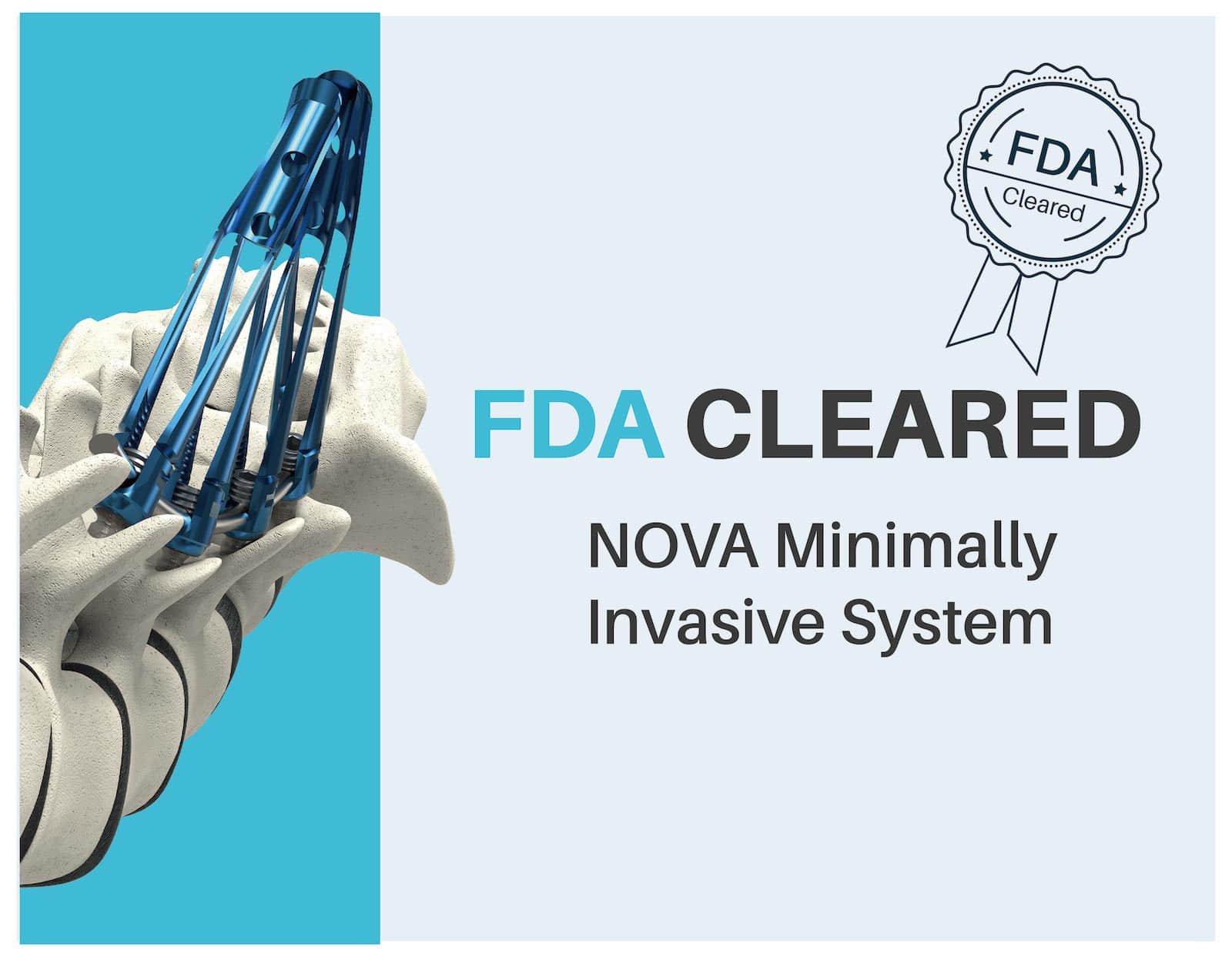 FDA Approves NOVA MIS System