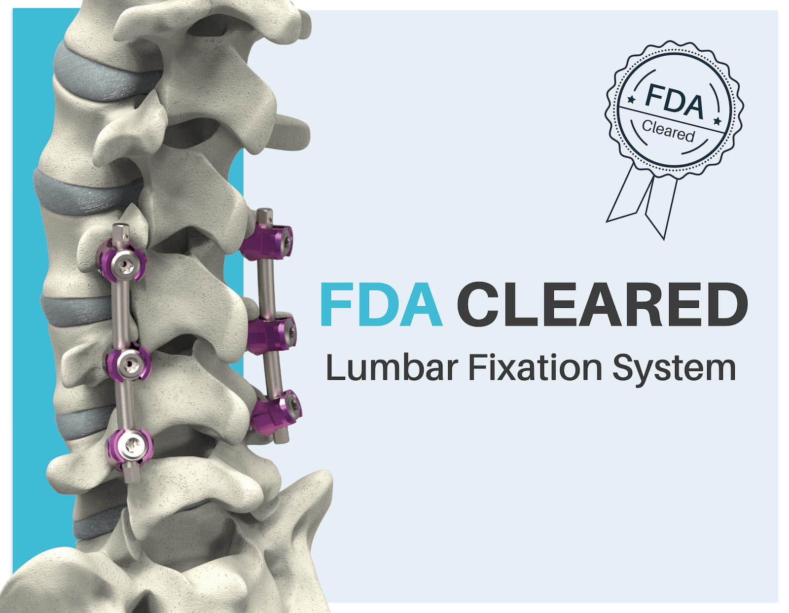 FDA Approves Lumbar Fixation System
